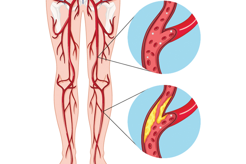 Tips if you have Peripheral Vascular Diseases and Their Treatment