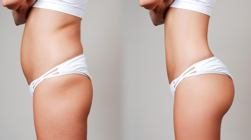 Knowing about the whatnots of liposuction in Turkey