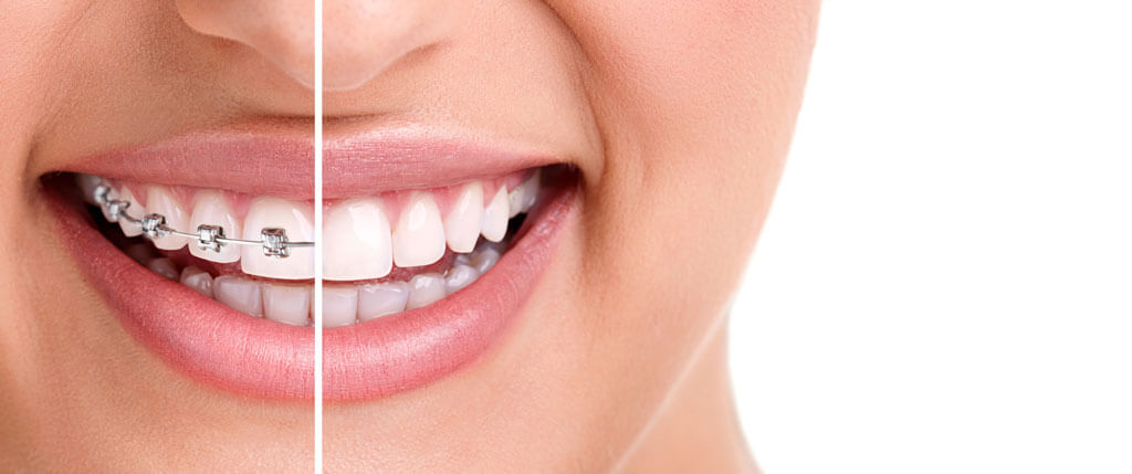 Get a perfect dental solution with Orthodontics Treatment in Turkey