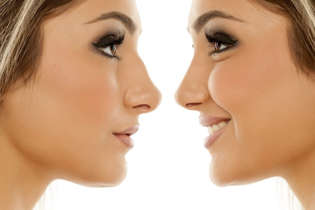 Advantages and disadvantages of getting a nose job in istanbul